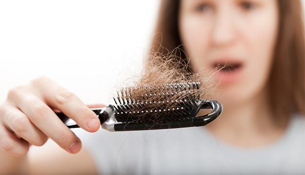 Alopesia Caida de cabello