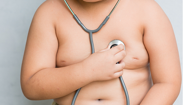 nino obeso obesidad