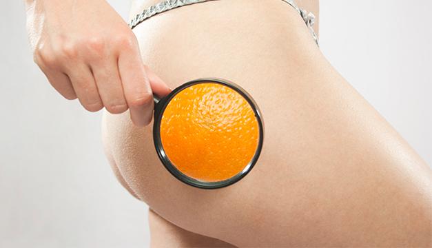 celulitis datos curiosos piernas piel