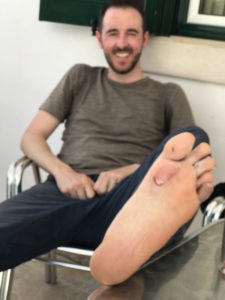 Merik from Czech has some blisters after only 3 days on the Camino.
