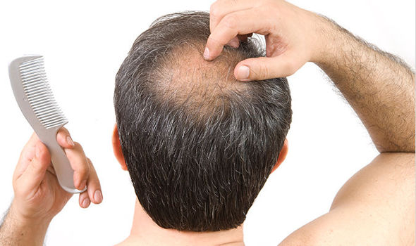 Why Your Hair Is Thinning And Falling Out & What To Do Next