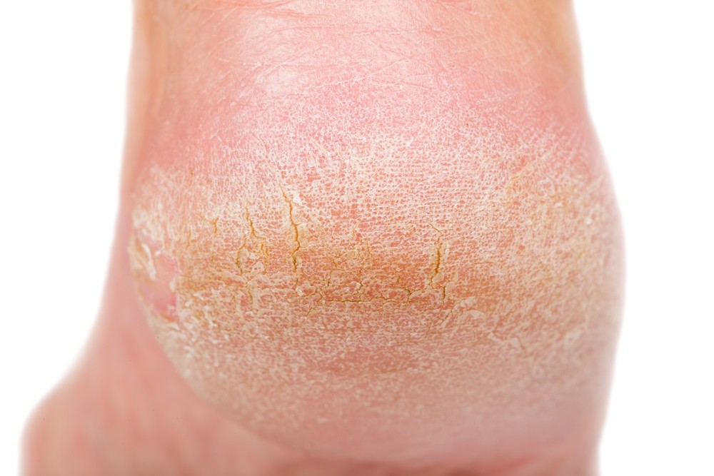 Everything You Need To Know About Removing Dry Skin On Your Feet