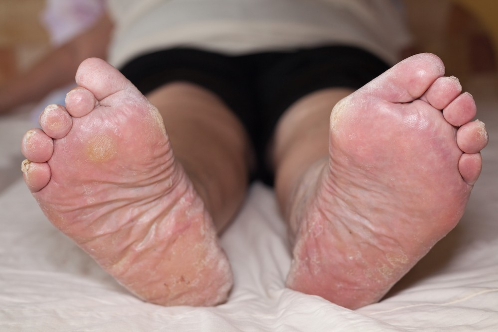 10 Common Causes Of Dry Skin On The Foot & Toes