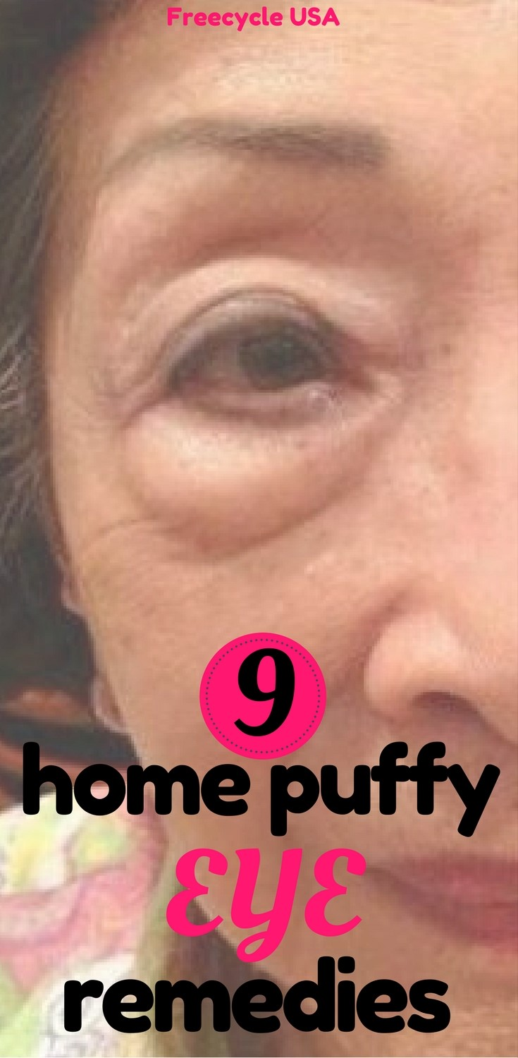 Home Remedies For Eye Puffiness From Crying
