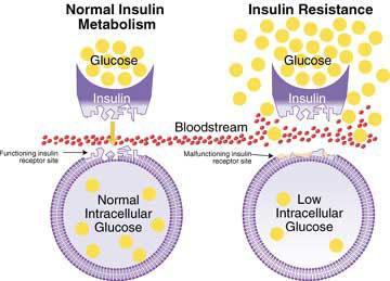 Excess Sugar Contributes to Insulin Resistance