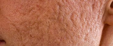 what cause acne scars