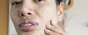 get rid of acne quickly