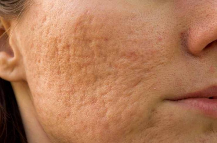 get rid of acne dark spots