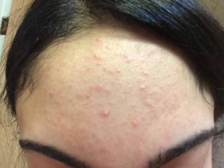 get rid of acne on forehead