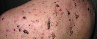 get rid of acne scars on back