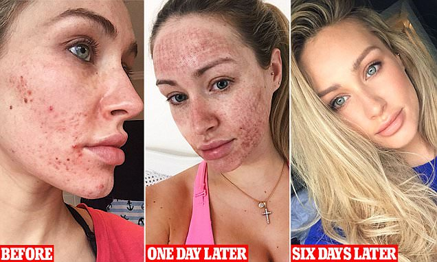 acne scars result