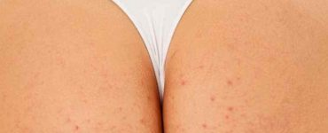 get rid ane scars on butt