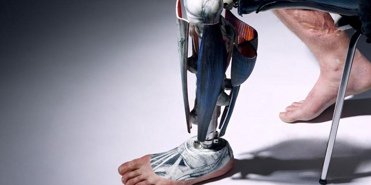 prothesis carbon fibre legs