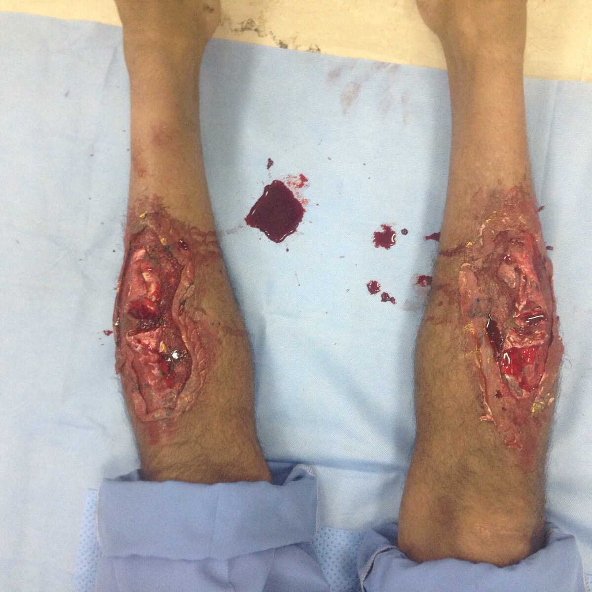 Severe Leg Trauma