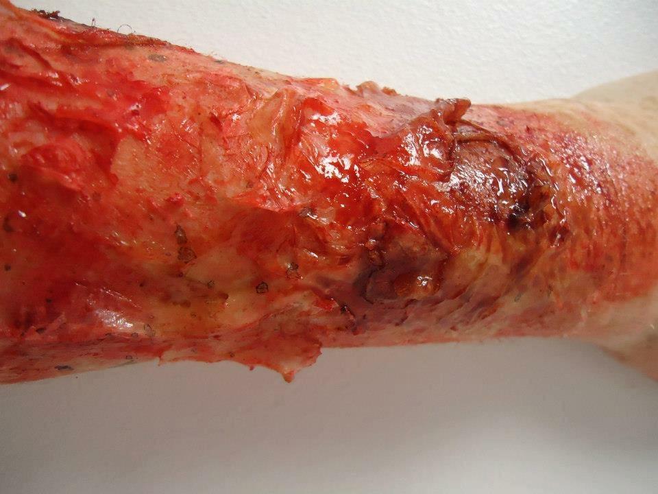 Arm Burn