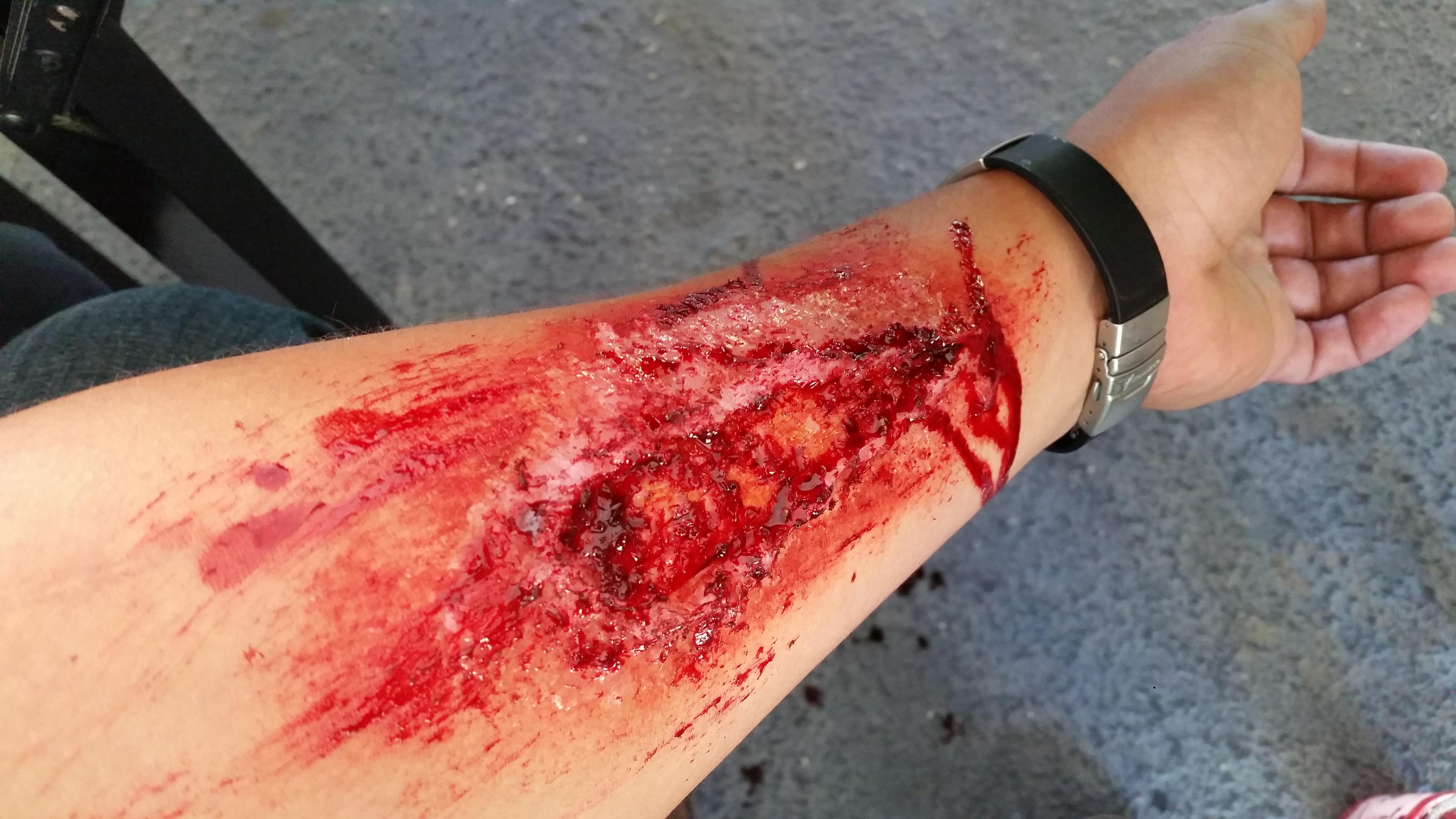 Arm Wound