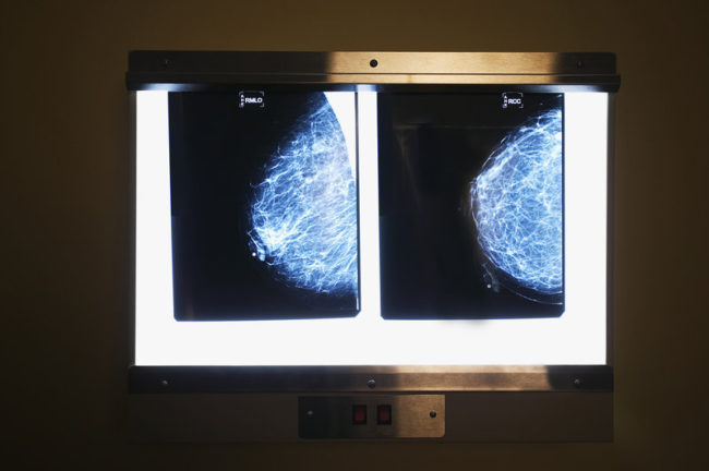 A change in mammography guidelines could affect their cost for many women. Robert Llewellyn/Corbis