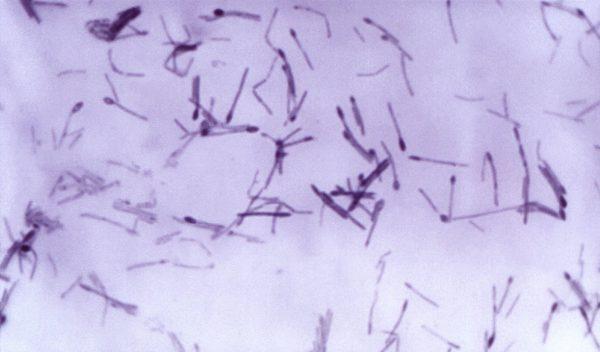 Bacteria that causes botulism.
