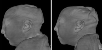 "Twin girls born with extremely small heads, shrunken spinal cords and extra folds of skin around the skull. Scientists think this skin forms when the skull collapses onto itself after the brain —€"" but not the skull —€"" stops growing. The images of the girls' heads were constructed on the computer using CT scans taken shortly after birth. The girls were infected with Zika at 9 weeks gestation. (Courtesy of the Radiological Society of North America)"
