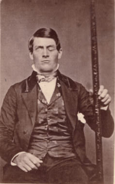 Cabinet-card portrait of brain-injury survivor Phineas Gage (1823–1860), shown holding the tamping iron which injured him.