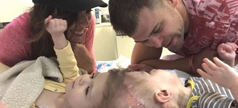 美國罕見頭部連體嬰將進行切割手術,需要你的捐助!