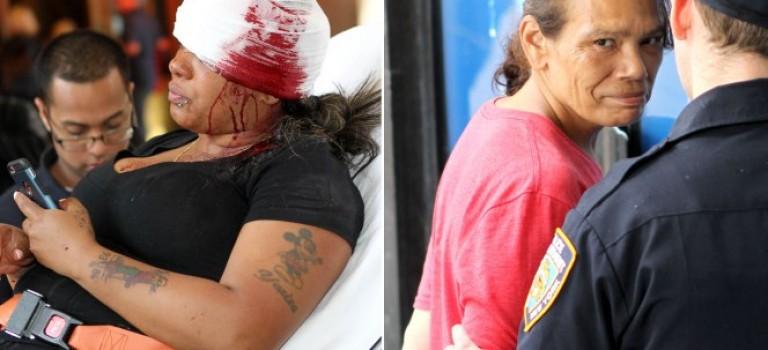 女子光天化日下慘被割臉!紐約地鐵安全再次引起群眾擔憂!