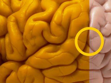 Em breve, será possível implantar memória artificiais no cérebro.