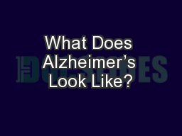 What Does Alzheimer's Look Like?