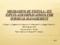 MR Imaging of fistula: Its inputs and implications for su