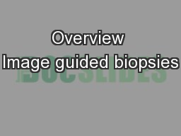 Overview Image guided biopsies