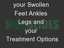 Causes of your Swollen Feet Ankles Legs and your Treatment Options
