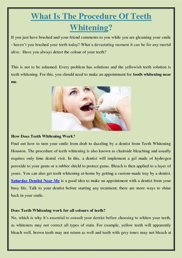 What Is The Procedure Of Teeth Whitening?