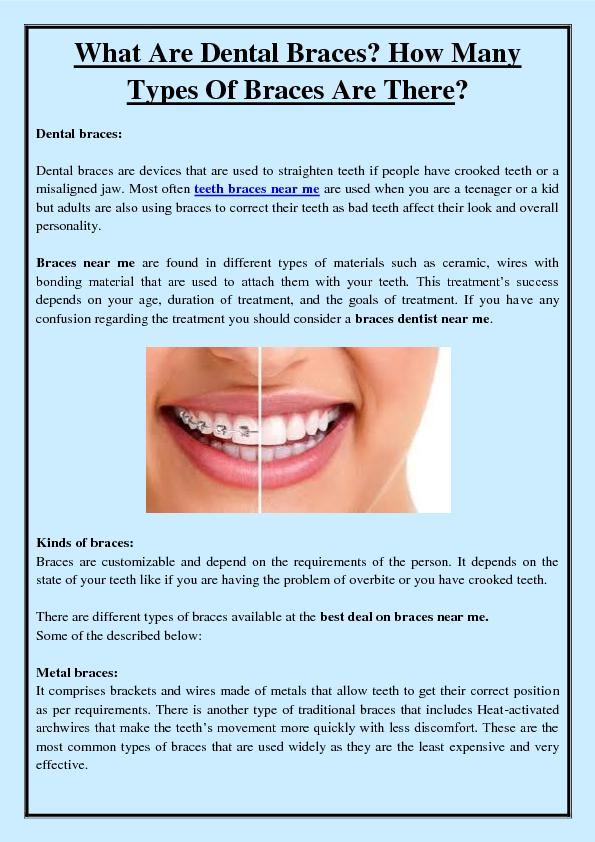 What Are Dental Braces? How Many Types Of Braces Are There?