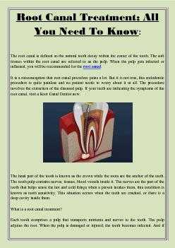 Root Canal Treatment; All You Need To Know: