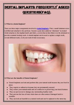 Dental implants: Frequently Asked Questions(FAQ).