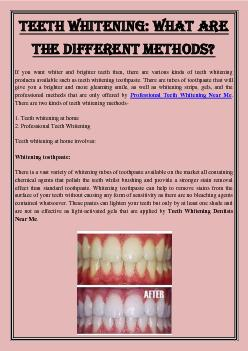 Teeth Whitening: What are the different methods?