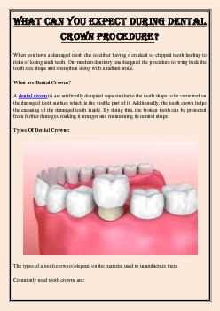 What Can You Expect During Dental Crown Procedure?