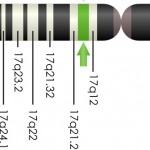 The BRCA1 gene location on chromosome 17.