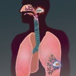 TB in lower lungs