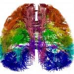 brain isocortex