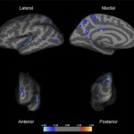 brain scan image