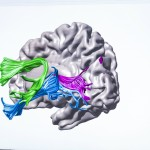 This illustration of the brain shows the arcuate fasciculus (green); inferior longitudinal fasciculus (blue) and posterior callosal connections (pink).