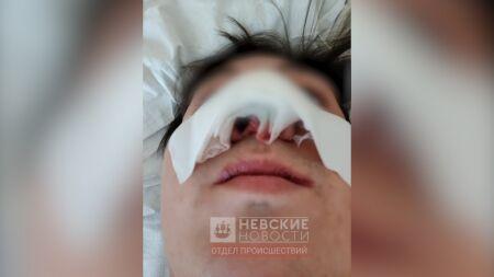 Пострадавший от укуса лошади петербуржец подаст в суд на наездницу