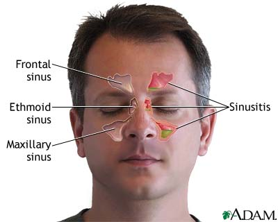 Sinus Surgery: What is Causing Sphenoid Sinus Infection 1287457001