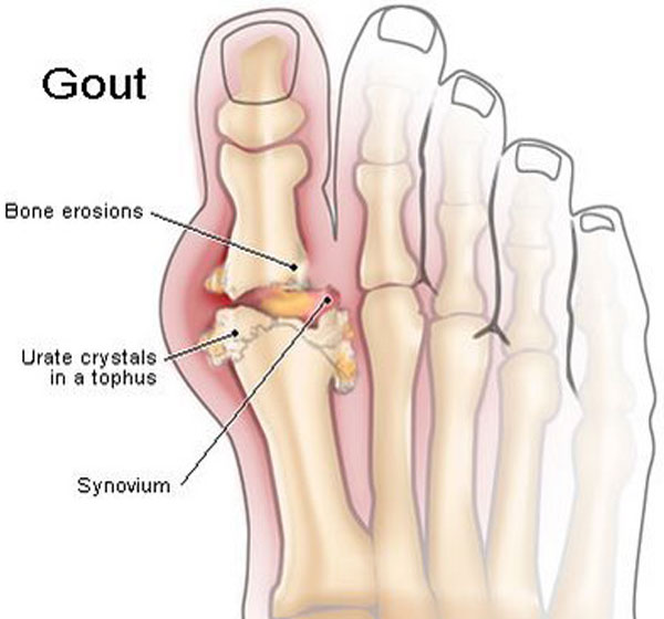 Toe Gout, Gout Causes Gout Causes and Treatment 1384315871