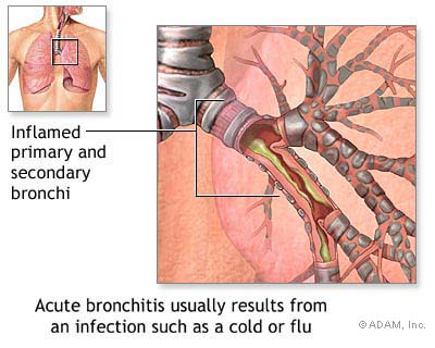 Bronchitis Patients 1435908282