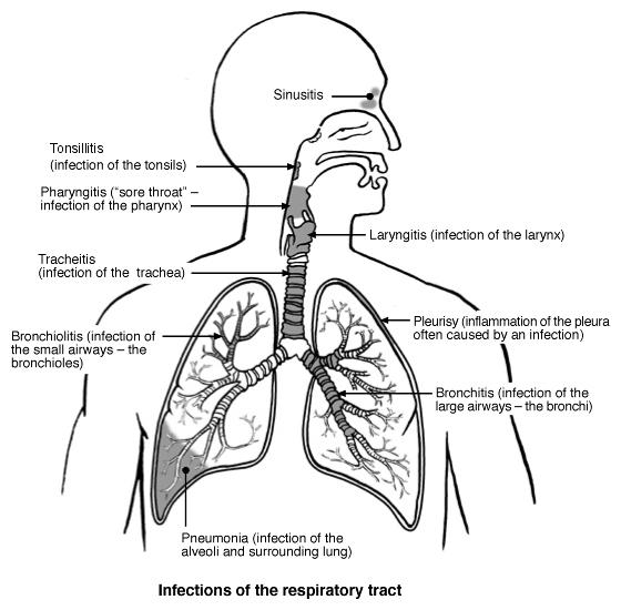 Bronchitis Complication: General Information on Acute 1466044820