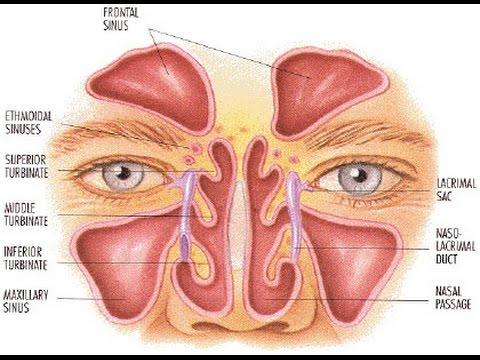 Sinus Problem: How to Treat Frequent Sinus Infections 1901211824
