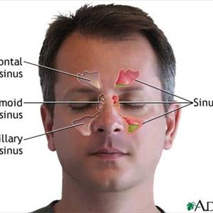 Sinusitis Epidemiologia, Persistent Sinus Issue, the Things 1977479535