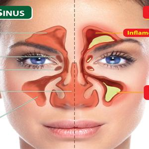 Control Sinus Infection 2068695531
